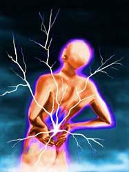 backache (1)